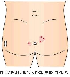 膿皮症(のうひしょう)
