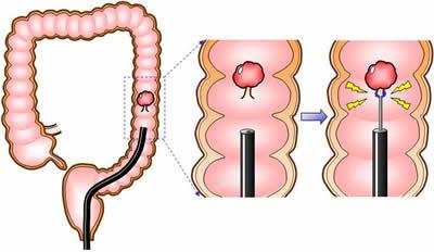 大腸ポリープが見つかったら、その場で切除して治療